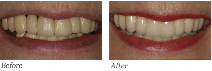 Patient had old bridges that were failing on both the upper and lower teeth. Patient was missing a tooth on the lower right.