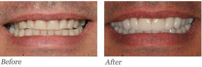 Patient's bite was dysfunctional causing accelerated wear including chipping at the edges and shortening of the teeth
