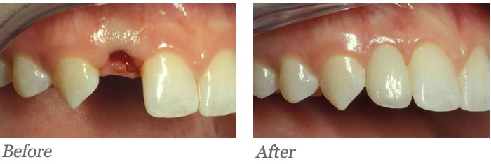 Single tooth needing replacement; post–extraction