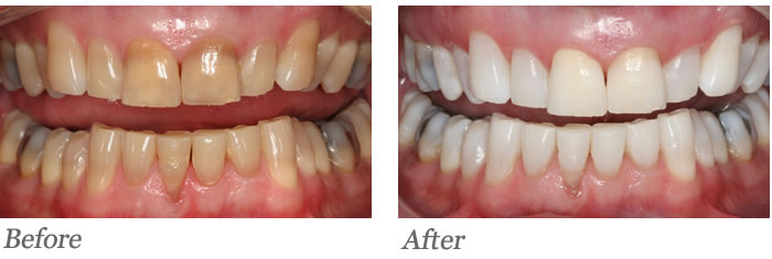 KÖR Deep Bleaching system used to create a WOW change in shade