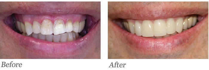 Improper bite function causing uneven wear. Patient also wished to have front teeth cosmetically improved.