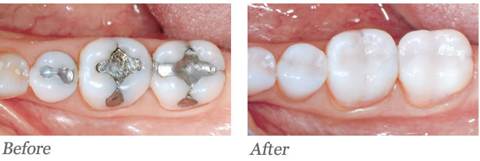 Teeth had large old amalgam fillings developing cracks and weakening.