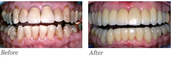 Almost all the teeth have failing existing crowns or very large fillings that were weakening the teeth.