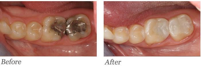 Back two teeth had large failing amalgam fillings.