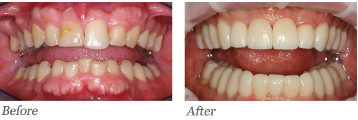 Patient's teeth were restored with all-porcelain veneers and crowns to replace lost tooth structure and regain proper bite function